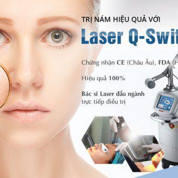 Trị nám bằng công nghệ laser Q-Switched
